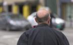 L'ANSM alerte sur les risques du médicaments anti-calvitie